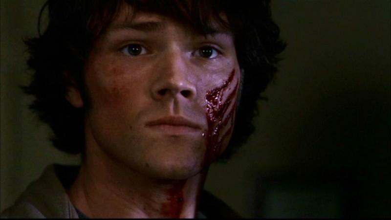 Jared Padalecki, nel ruolo di Sam, ferito dopo lo scontro con un demone nell'episodio 'Ombre' di Supernatural (stagione 1)