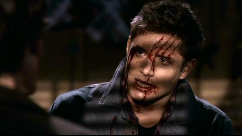 Jensen Ackles nel ruolo di Dean, appena sfuggito all'attacco di un Daeva nell'episodio 'Ombre' di Supernatural
