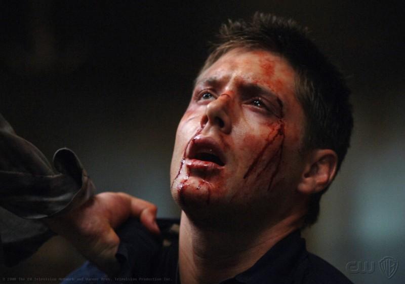 Un sofferente Jensen Ackles nell'episodio On the Head of a Pin di Supernatural