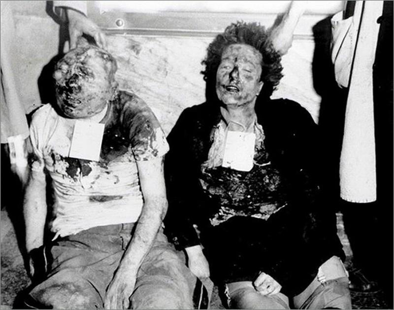 Il corpo del duce: i cadaveri di Benito Mussolini e Claretta Petacci in obitorio mostrati in una scena del film