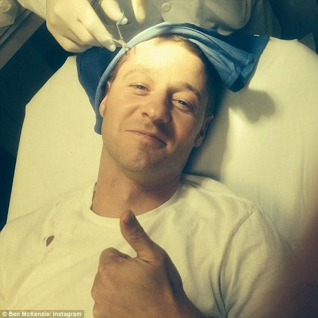 Gotham: Ben McKenzie in ospedale viene ricucito dopo essersi ferito sul set della serie tv in lavorazione