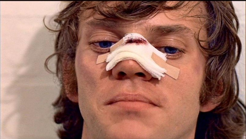 Malcolm McDowell in una sequenza di ARANCIA MECCANICA