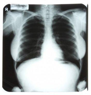 La radiografia del torace di Marilyn Monroe che è stata messa all'asta nel 2010.