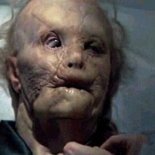 Gary Oldman orribilmente sfigurato in Hannibal
