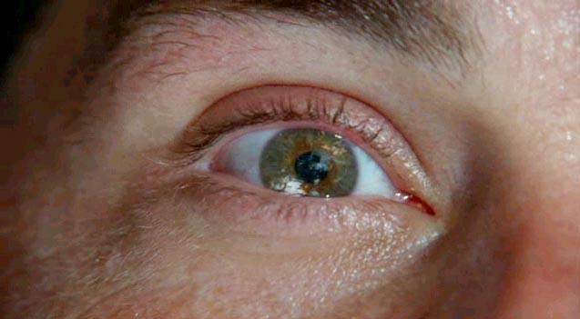 Lost: l'occhio di Jack che apre il pilot