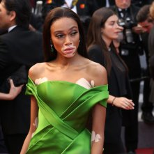 Cannes 2018: Winnie Harlow sul red carpet di Blackkklansman
